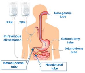 tube feeding anatomy