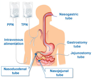 tube feeding anatomy